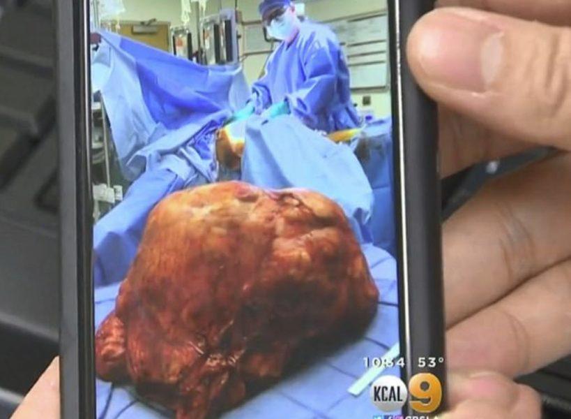 Приятелите на Хектор го спукваха от бъзици заради биреното му коремче, докато лекарите не извадиха от него нещо ужасяващо (СНИМКИ)